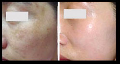 黄褐斑治疗效果对比图1