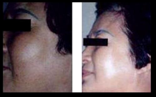 黄褐斑治疗效果对比图2