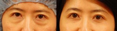 下眼睑手术的术前及术后对比图