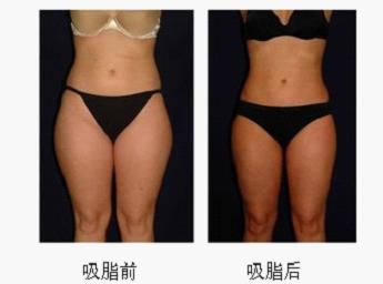 吸脂术前及术后
