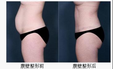 腹壁整形术前及术后