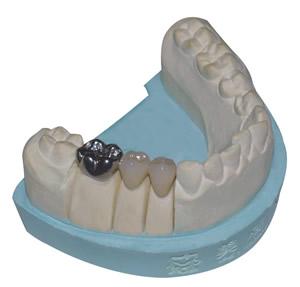 固定假牙示意图