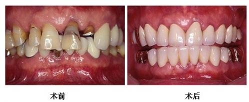 镶牙前后对比图