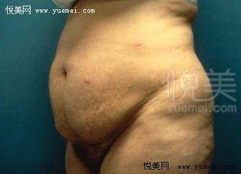 腹壁肚皮松的v腹壁---产后整形羊肚菌无花果图片