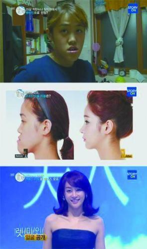 韩国整容节目过热 文化界呼吁提高警惕