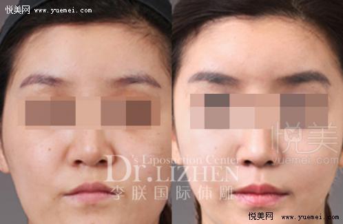 面部脂肪填充过程,自体脂肪填充面部,面部脂肪填充 ...