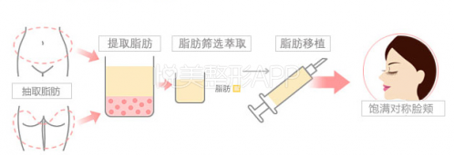 悦美专访:脂肪填充怎样做出自然感——上海新华医院马晓荣