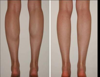 小腿抽脂_瘦小腿方法_怎么瘦小腿优缺点_注意事项_术后恢复_悦美整形