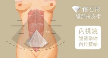 松垮肚有救!? 台湾名医解读腹壁成形术拯救数百妈咪