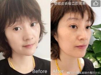 「微感双眼皮术」惊艳国内 台湾高义盛医师面诊预约暴增